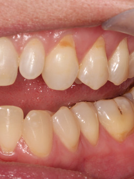 Patient presented with caries on the facial of #11 along the free gingival margin