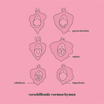hymen-roze.jpg