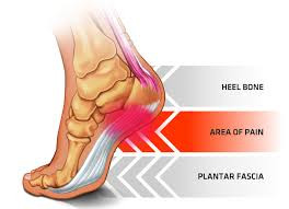 The Five Goals of Treating Plantar Fasciitis