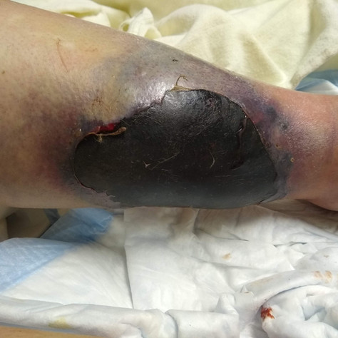 Think you're having a bad day? A collection of recent ER cases