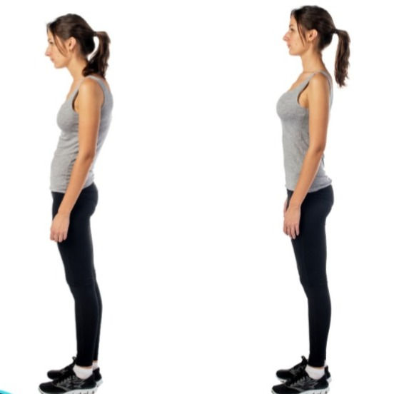 Posture & Movement Assessment