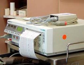 Appareil d'endoscopie