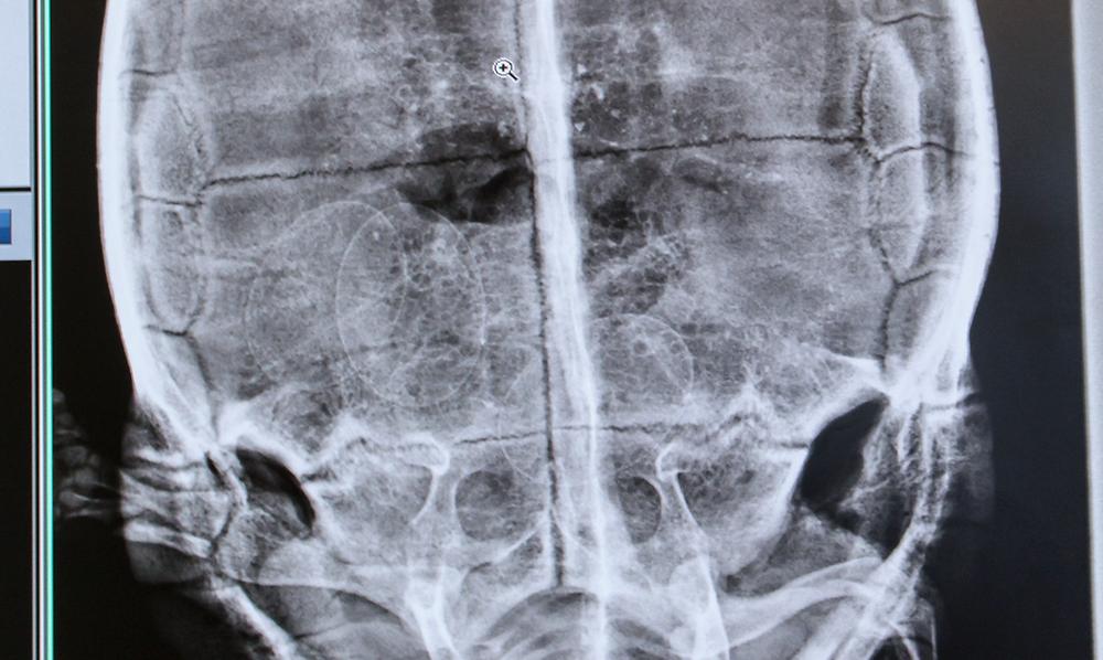 Radiologie d'une rétention d'oeufs
