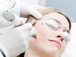¿Tratamiento láser o Botox?, te decimos qué es lo mejor para ti