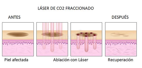 laser co3.png