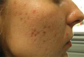 Aprende por qué aparecen estas manchas negras en la cara.