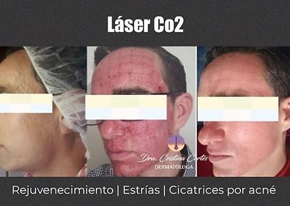 laser co2.png
