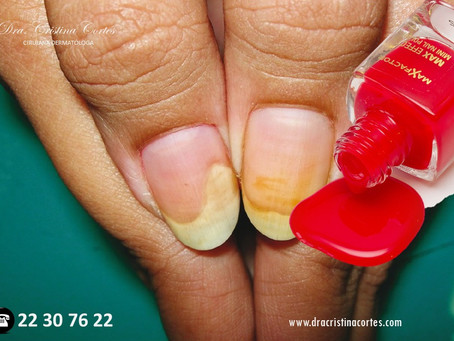 """Daño severo a las uñas por """"gelish"""""""