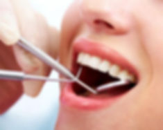 teeth cleaning and maintenance