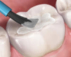tooth sealants