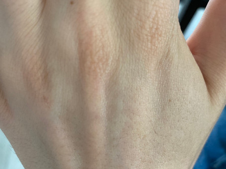 Removing Epoxy Resin from your Skin