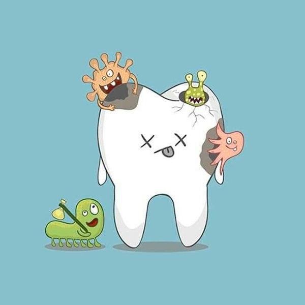 ¡Endodoncias a sólo $1,300!
