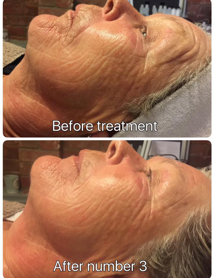 Microdermabrasion after 3 treatments