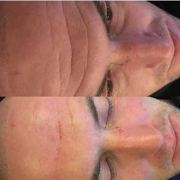 Male Microdermabrasion