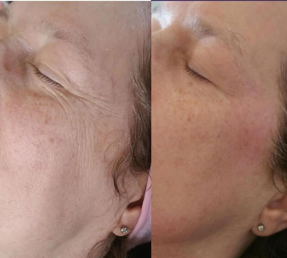 after 2 micro dermabrasions for fine lines