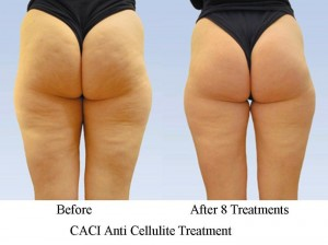 CACI-Anti-Cellulite