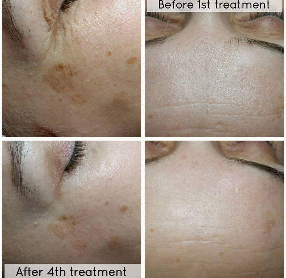 Pigmentation with Microdermabrasion