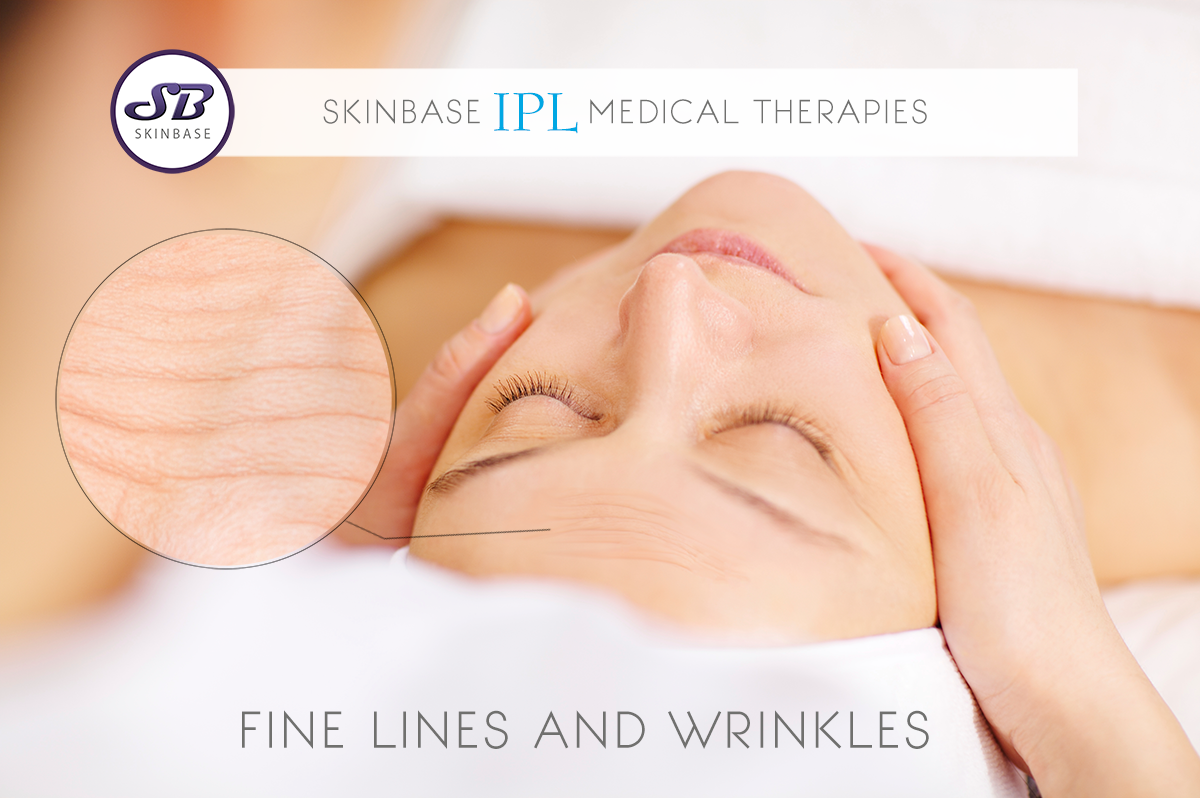 Medical IPL treatments