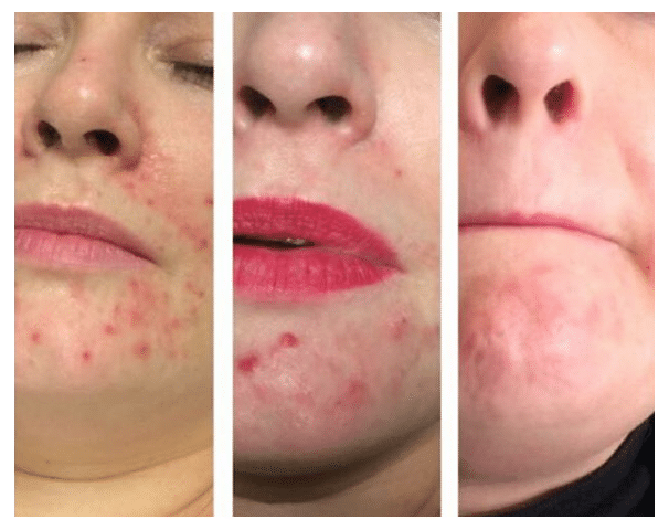 Acne after 3 treatments