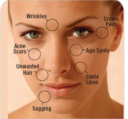 Microdermabrasion Expert Treatment