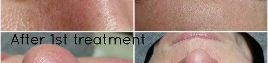 Blocked Pores