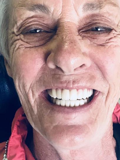 Hybrid-denture1.jpeg