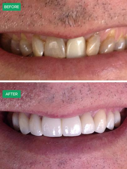 hybrid-denture.jpeg