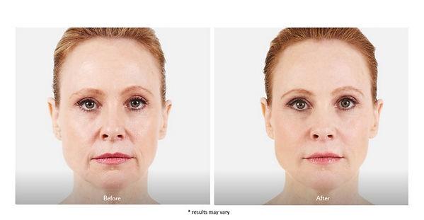 juvederm-before-and-after-skinney-medspa