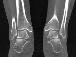 Bilateral-Bone-Detail.jpg