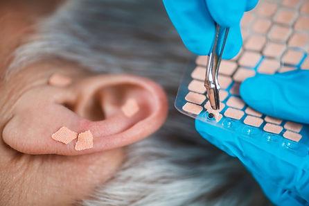 Auriculotherapy, or auricular treatment