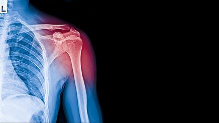 X-ray image of shoulder pain, shoulder l