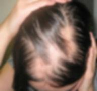 rambut-rontok-Mengobati-Penyakit-Kulit.j