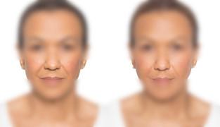 Nasal Fold/Upper Lip Lift for Women & Men