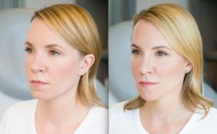 Botox for Lip Line Prevention