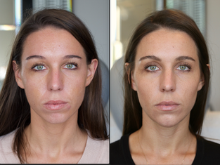 Jowling Sides of Mouth with Marionette Lines Support Filler