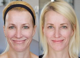 Cosmelan MD for Skin Lightening