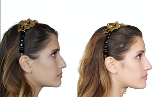 Botox Nose Slimming
