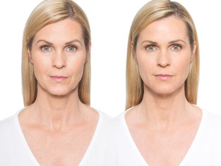 Botox Brow Lift for Men and Women
