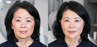GoodSkin | LA | NY | Healthy-Aging
