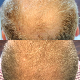 PRP Injection for Hair Loss
