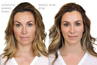 Botox/Filler Correction