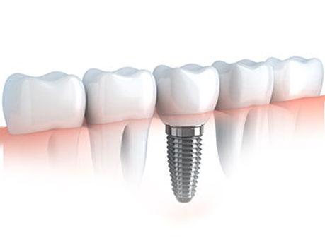 Implant8.jpg