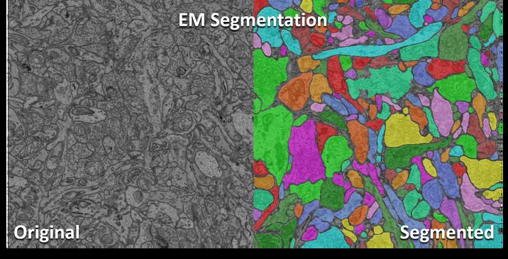 EM segmentation model