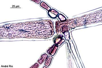 Antithamnionella ternifolia 7