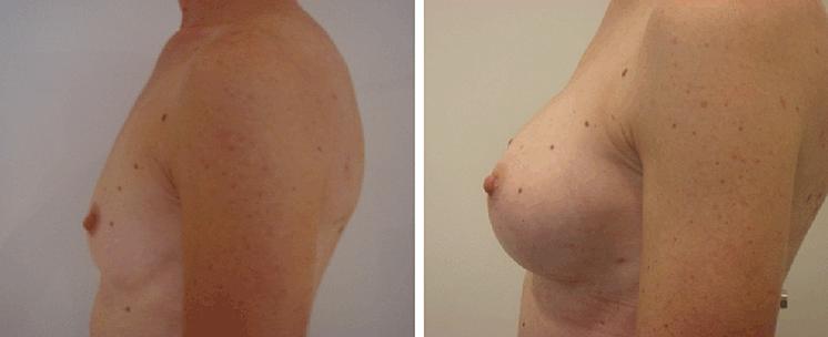 Brustvergrößerung Eigenfett Erfahrungen