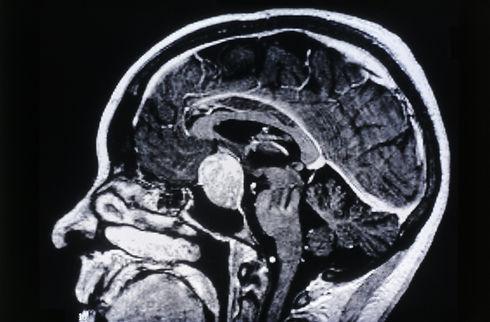 pituitary-adenoma_ss_SS2627969.jpg