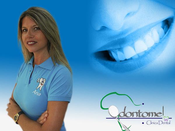 Limpieza dental, Curetajes higiene bucal Odontomel Melill