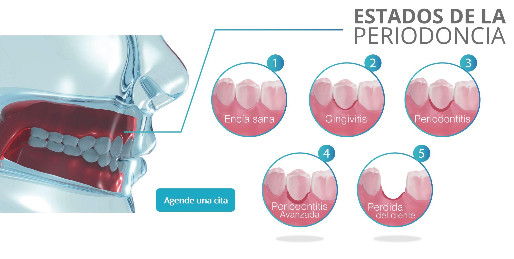 estados-de-la-periodoncia-clinica-dentisa
