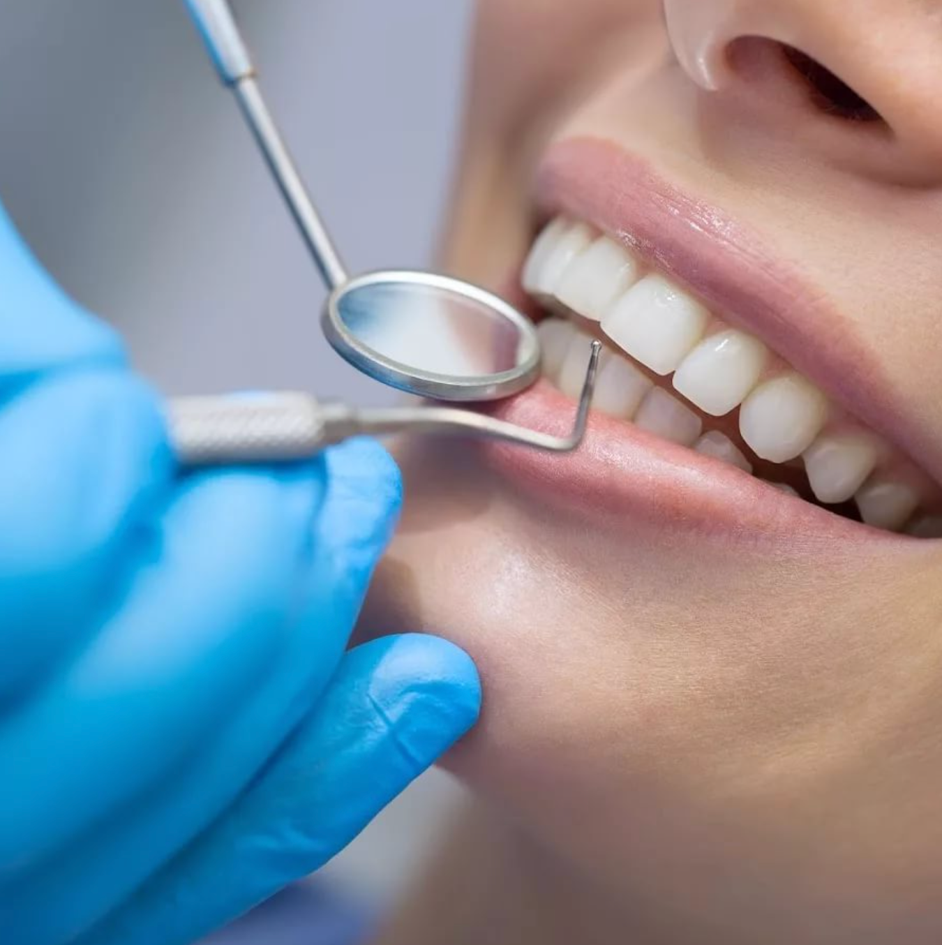 Лечение кариеса постоянных зубов