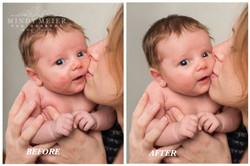 Baby Acne at 3 weeks old